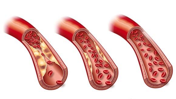 Понизить уровень холестерина